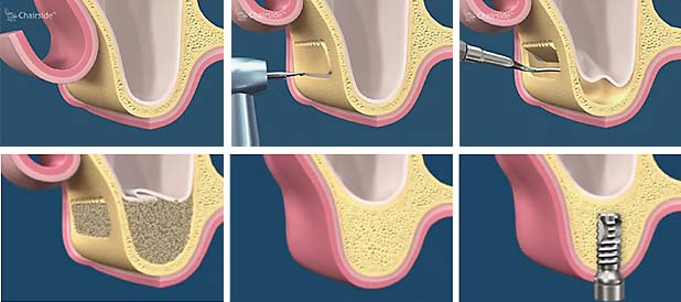 Sinus Floor Elevation Using Osteotomes : Sinus lift methuen periodontics and implant dentistry