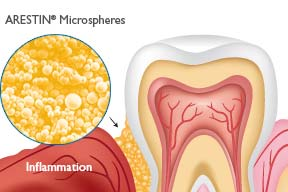 Periodontal Non Surgical Treatment Methuen Periodontics