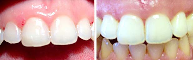 crown-lengthening-before-and-after-2