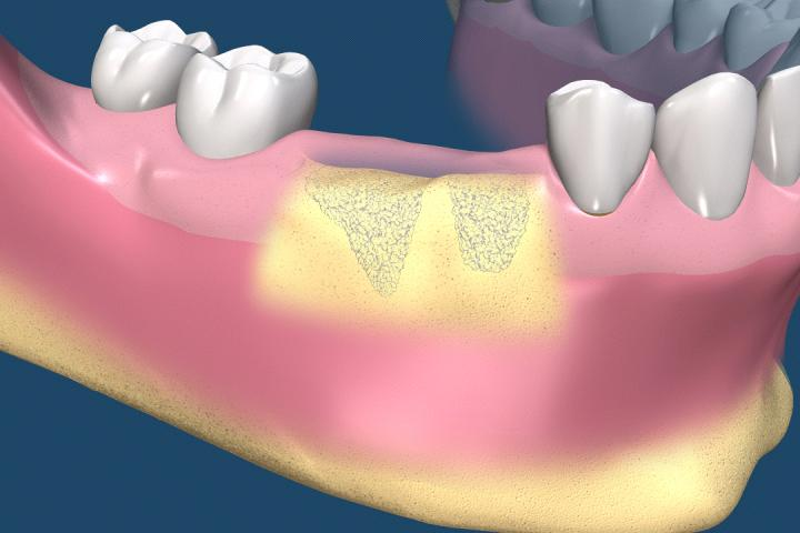 После удаления зуба мудрости оголилась кость
