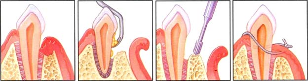 Osseous Surgery Diagram