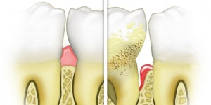 Healthy versus diseased gums