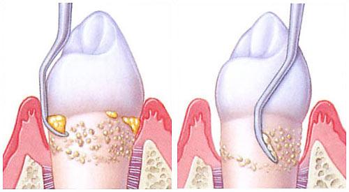 Periodontal Non Surgical Treatment Methuen Periodontics