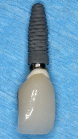 Single Crown Implant