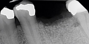 root-fracture-2